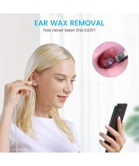 Anykit Ear Wax Removal Tool, HD Otoscope for Android and PC - $32.50