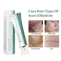 Scar Removal Cream Skin Care Face Cream Treatment Whitening Moisturizing... - $8.76