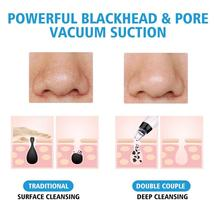 Blackhead Vacuum Suction 3 Color Light Photon Rejuvenation Tool image 7