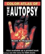 The Color Atlas of the Autopsy - CDROM - Adobe PDF - $55.00