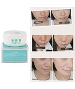 Clean Face Pigment face skin care Remove Cream Fade Dark Spots Whitening... - $8.00