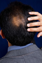 Baldness Hair Loss Hex Spell Curse His Narcissism to Public Self Conscious Shame - $50.00