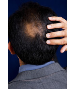 Baldness Hair Loss Hex Spell Curse His Narcissism to Public Self Conscio... - $50.00