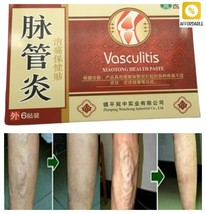 Spider Veins Varicose Treatment Plaster Vasculitis Natural Solution Herb... - $8.59