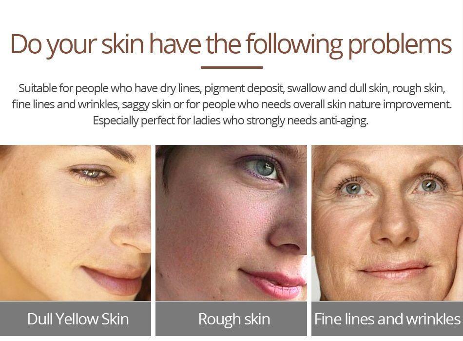 Crocodile Repair Face Cream Acne Scar Removal Whitening Spots Stretch Treatment image 10