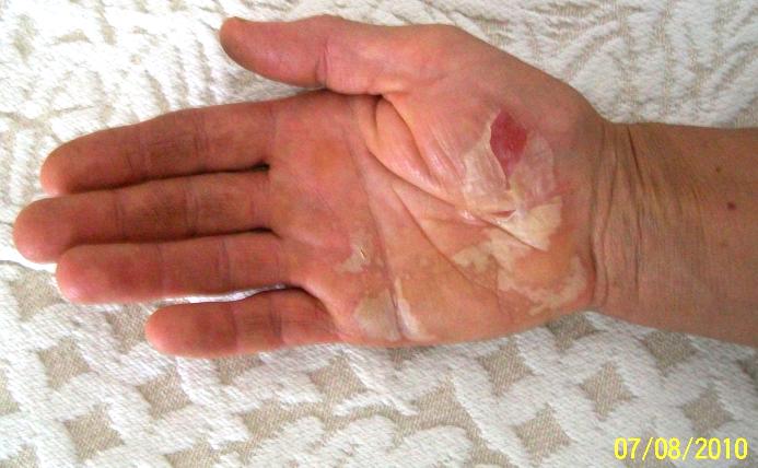 TLC Balm .75 ounce, natural healing ointment, eczema, bruises, sores, burns