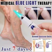 Blue Laser Pen Wrinkle Removal, Scar Removal, Spider Vein Removal Device image 4