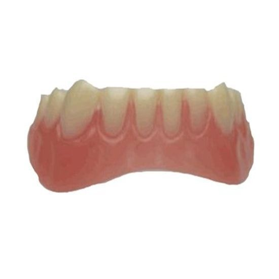 Temporary Cosmetic Teeth Makeover- For Lower Teeth