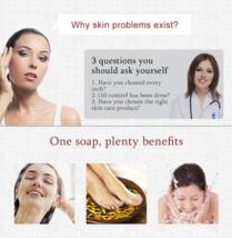 1 piece Zudaifu Sulfur sulphur Soap skin repair clearance Acne Psoriasis... - $3.97