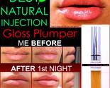 Lip plumper before   after 2 thumb155 crop