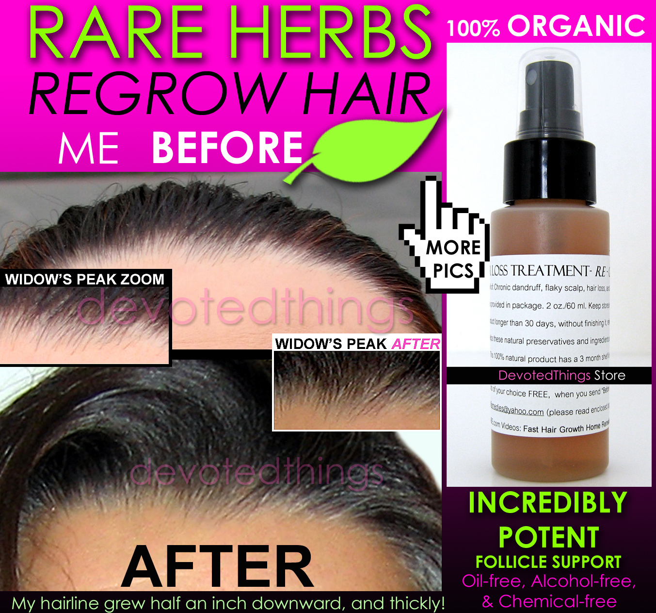 Primary image for BEST ORGANIC Hair Loss Treatment and Hair Growth Support Anti Dandruff Spray