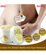 Cream Remove Scar Stretch Marks Care Postpartum Maternity Skin Body Repair - $14.99