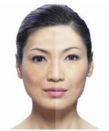 WHITENING Anti Melasma SOAP Acne Freckle SOAP HERBAL - $6.92