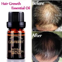 Hair Care Natural With No Side Effects Loss Products Grow Hair Faster Regrowth  - $6.02