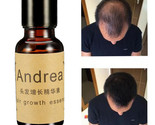 Andrea Fast Hair Growth Essence Liquid Pilatory For Men And Women 20ml Alopecia