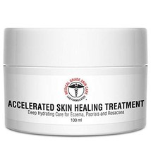 Eczema, Rosacea, Dermatitis, and Psoriasis Cream   Medical Grade Accelerated Ski
