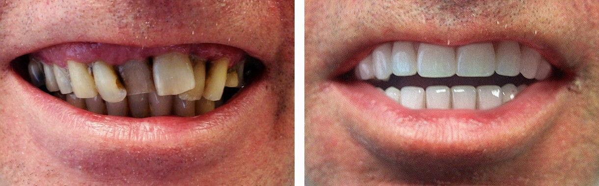 Implant 010
