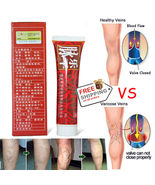 Varicose veins Cream Medical treatment anti foot leg vasculitis Phlebiti... - $21.99