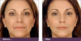 Ageless Enchantment Help Rid you of your wrinkles look young again - $14.85