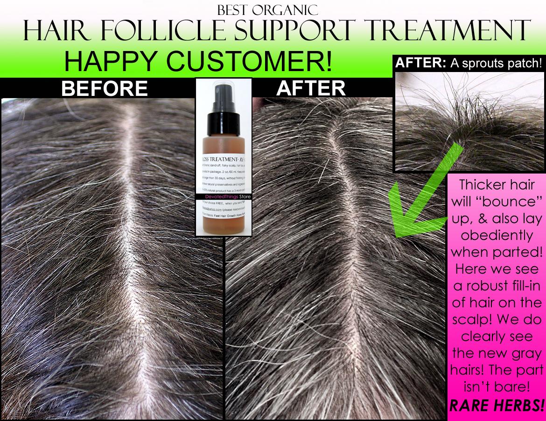 Regrowz Natural Hair Loss Remedy for Men - amazon.com