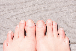 Ugly Feet Repulsive Appearance Candle Spell Cause her Feet To Be Distorted - $50.00