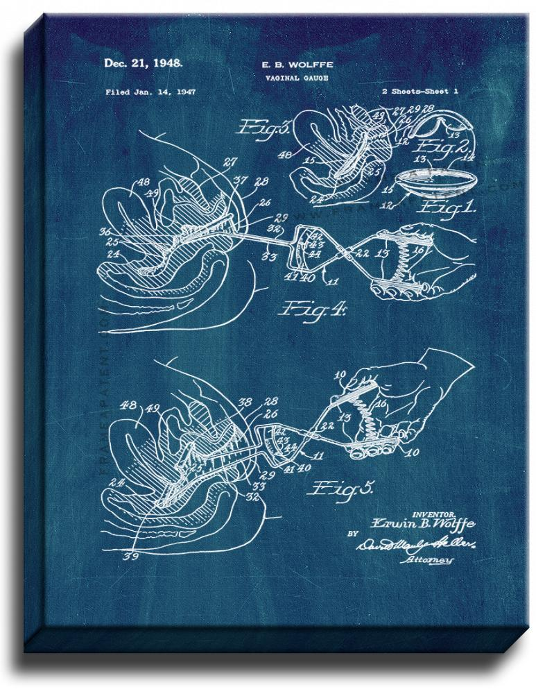 Primary image for Vaginal Gauge Patent Print Midnight Blue on Canvas