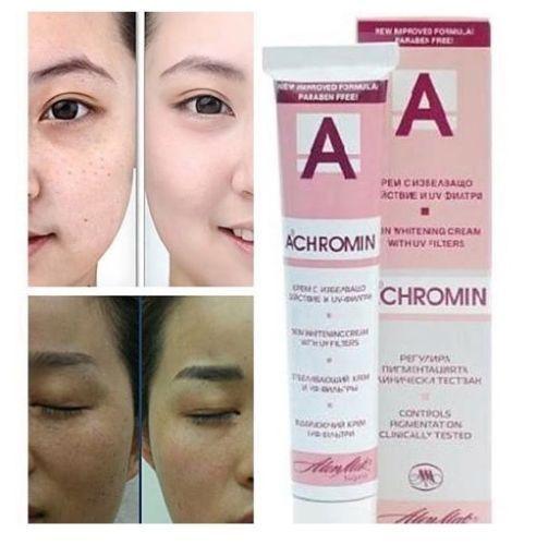 ACHROMIN WHITENING SKIN CREAM Anti dark age spots freckle 45ml