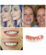 The Amazing Zippy Smile gives you the look of perfect teeth you'll be pr... - $6.59