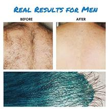 ILansley Wax Kit for Women Men Coarse Body Hair with Strongest Blue Refill Hard  image 4