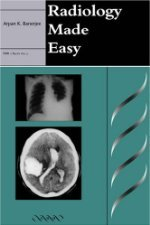 Radiology Made Easy by Banerjee 1841100145