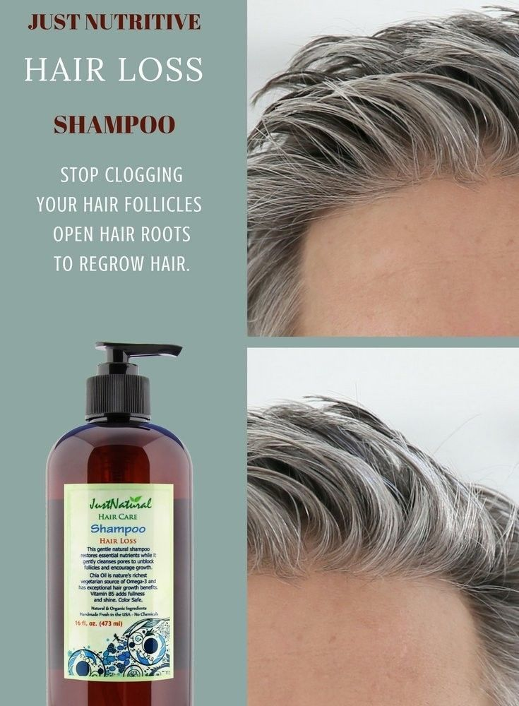 Hair Loss Therapy Shampoo With Vitamin B5 For Healthy Hair 16 oz NOURISH CLEANSE