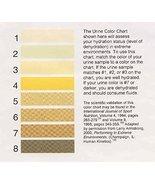 Vinteja charts of - Urine Color Chart - A3 Poster Print - $22.99