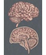 Cross Section Of The Brain Mind Morbid Science Postcard - $5.99
