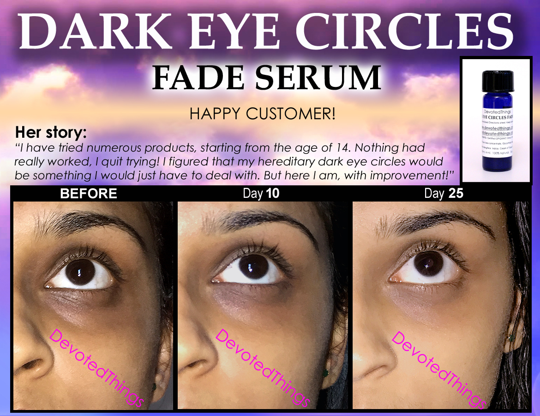 Natural Dark Circles Eye Treatment For Lightening Eyelids