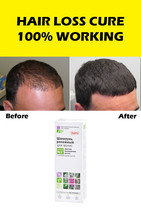 100% Works 5x Anti Hair Loss Scalp Treatment Instant Results Regrowth Women Men - $79.95