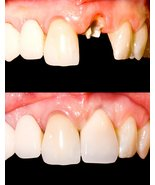 Temporary tooth repair kit dental fix missing f... - $5.95