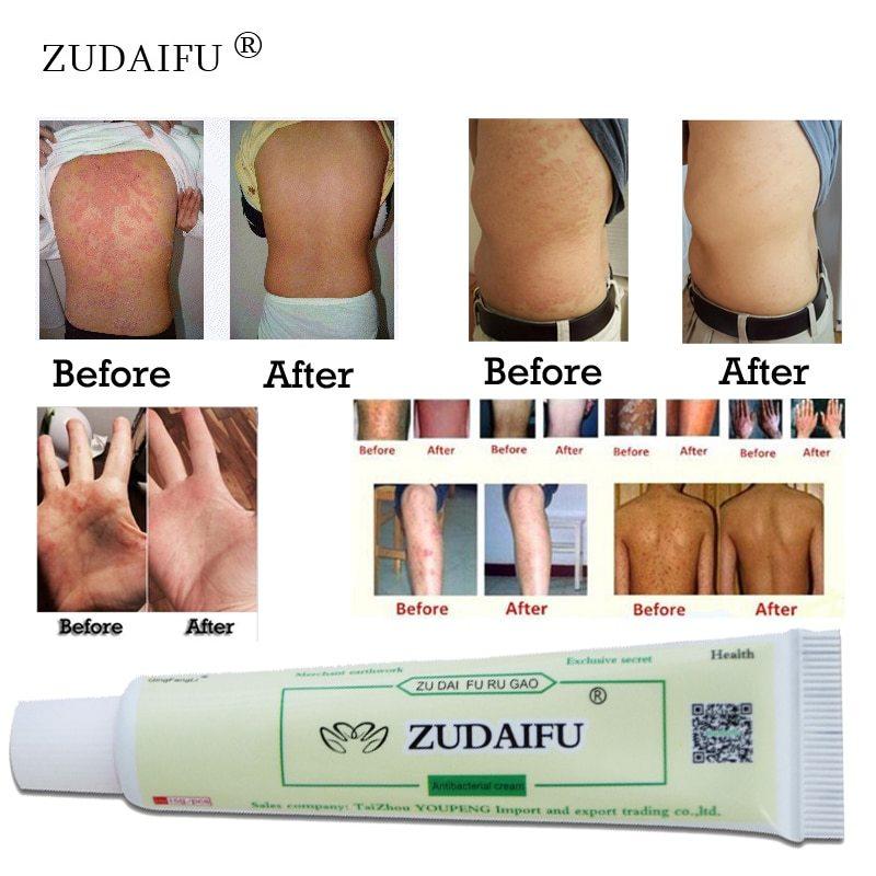 1piece zudaifu body psoriasis cream psoriasis ointment facial cleansing