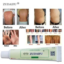 1piece zudaifu Body Psoriasis Cream Psoriasis Ointment Facial Cleansing  - $3.40