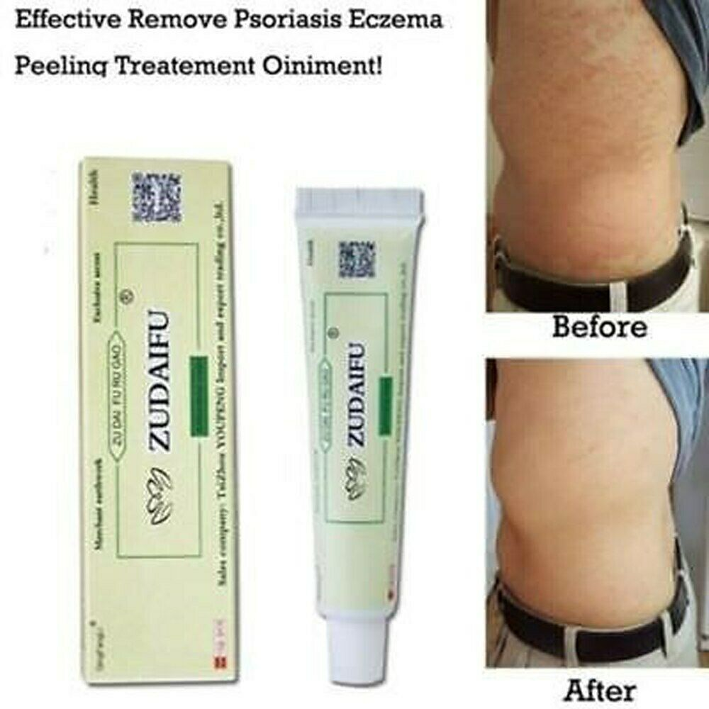 Primary image for 15g/Box Dermatitis Eczematoid Eczema Ointment Treatment Psoriasis Cream Skin Car