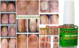 AntiFungal Nail Treatment Drg Toe Nail Finger F... - $9.67
