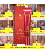 Herbal Nail Treatment Onychomycosis Paronychia Anti Fungal Nail Infection  - $8.90