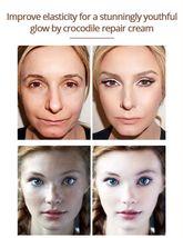 Crocodile Repair Face Cream Acne Scar Removal Whitening Spots Stretch Treatment image 8