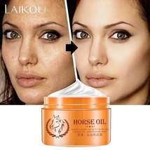 STRONG Whitening Moisturizing For Oily Skin Anti-Freckle Dark Spot Cream - $15.99
