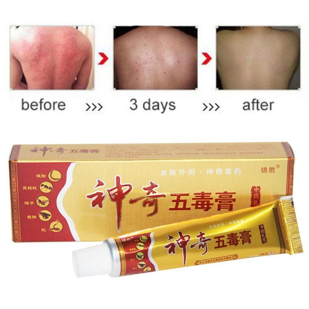 Skin Herbal Psoriasis Pruritus Cream Dermatitis Eczematoid Eczema Ointment Treat