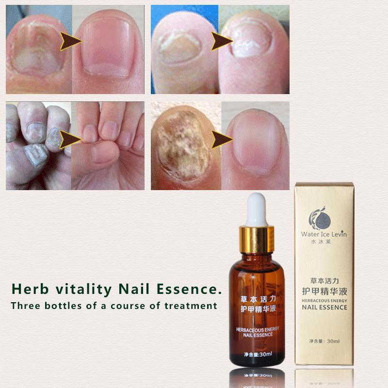 30ml Fungal Remover Nail Treatment And Foot and 50 similar items