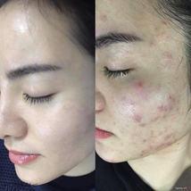 Soo Young Korea High Quality Acne Cream Skin Care Treatment Set image 10