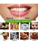Teeth Whitening 30g Oral Care Charcoal Powder Natural Activated Oral Hyg... - $7.38