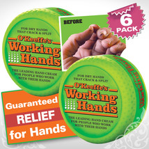 O'Keeffe's working hands skin cream for dry crack&split 3.4 oz. (6 Pack) - $51.60