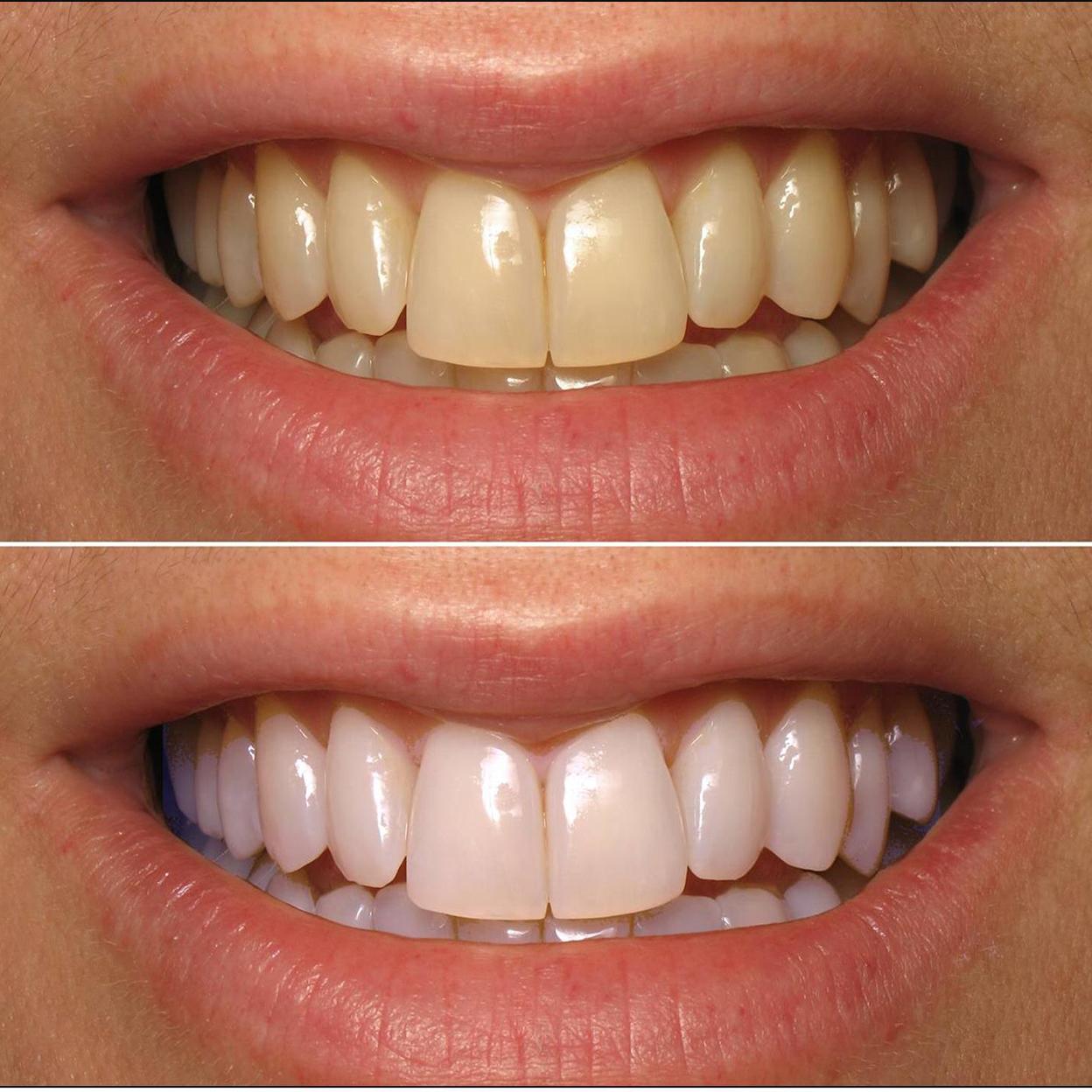 3 Always White Teeth Whitening Blue Led And Similar Items