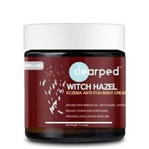 Witch Hazel Anti-Itch Eczema Cream